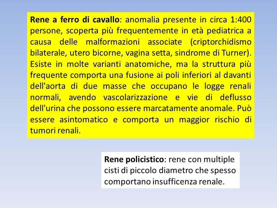 Rene a ferro di cavallo: anomalia presente in circa 1:400 persone, scoperta più frequentemente in età pediatrica a causa delle malformazioni associate (criptorchidismo bilaterale, utero bicorne, vagina setta, sindrome di Turner). Esiste in molte varianti anatomiche, ma la struttura più frequente comporta una fusione ai poli inferiori al davanti dell aorta di due masse che occupano le logge renali normali, avendo vascolarizzazione e vie di deflusso dell urina che possono essere marcatamente anomale. Può essere asintomatico e comporta un maggior rischio di tumori renali.