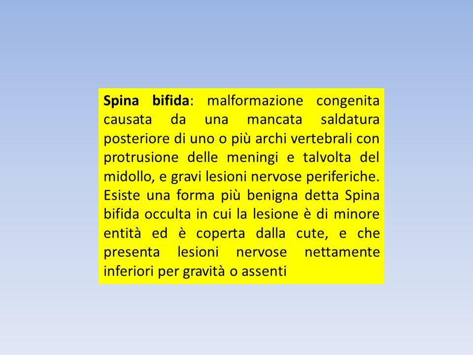 Spina bifida: malformazione congenita causata da una mancata saldatura posteriore di uno o più archi vertebrali con protrusione delle meningi e talvolta del midollo, e gravi lesioni nervose periferiche.