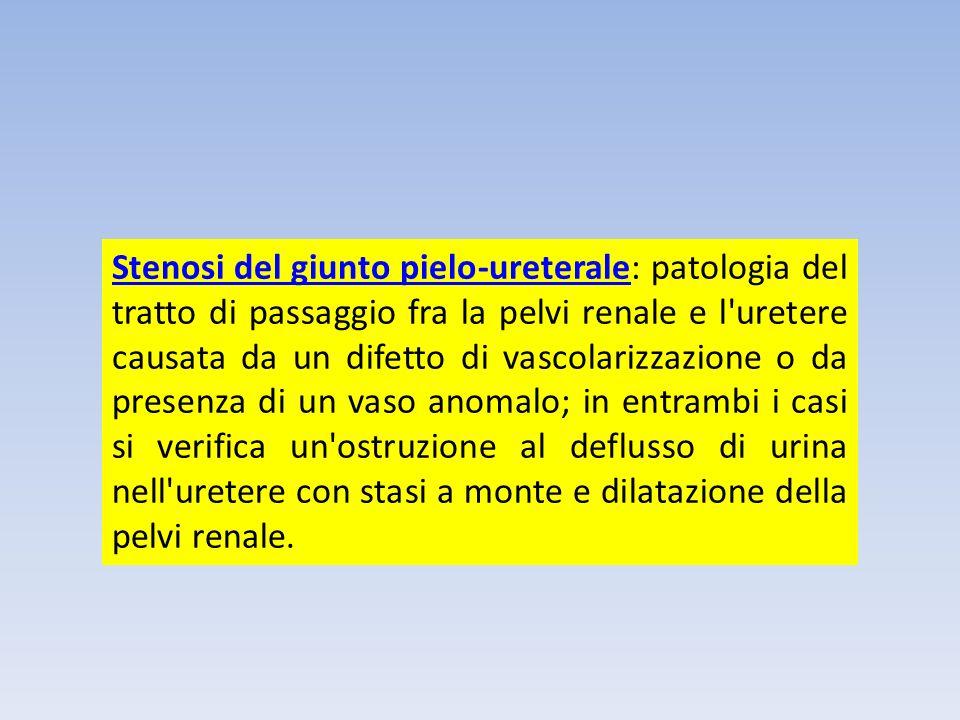 Stenosi del giunto pielo-ureterale: patologia del tratto di passaggio fra la pelvi renale e l uretere causata da un difetto di vascolarizzazione o da presenza di un vaso anomalo; in entrambi i casi si verifica un ostruzione al deflusso di urina nell uretere con stasi a monte e dilatazione della pelvi renale.