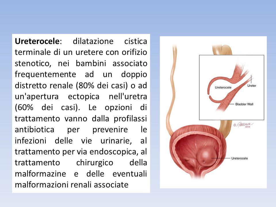 Ureterocele: dilatazione cistica terminale di un uretere con orifizio stenotico, nei bambini associato frequentemente ad un doppio distretto renale (80% dei casi) o ad un apertura ectopica nell uretra (60% dei casi).