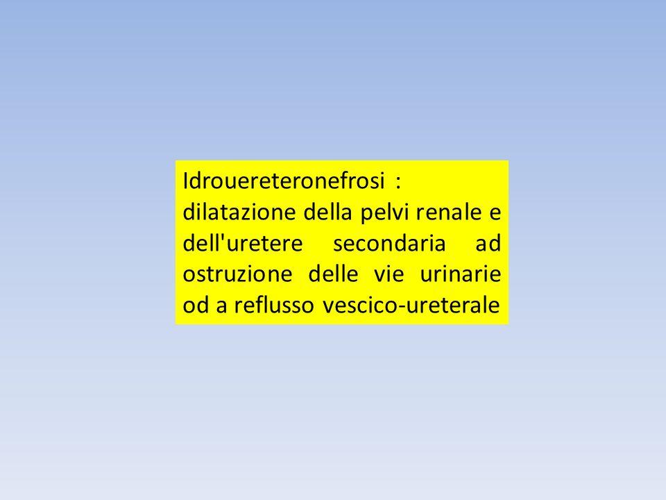 Idrouereteronefrosi :