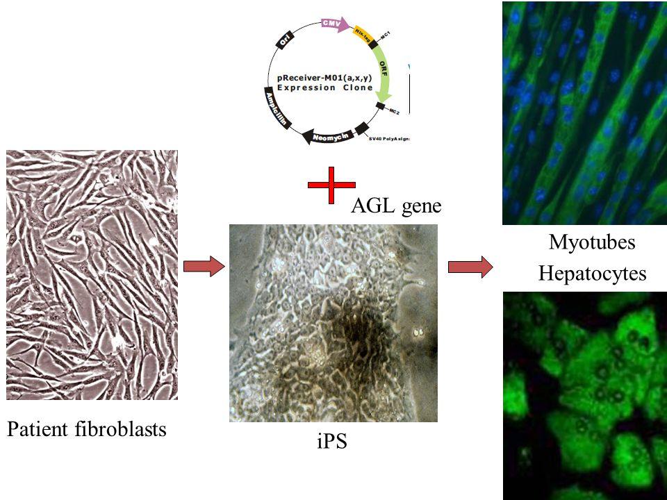 AGL gene Myotubes Hepatocytes Patient fibroblasts iPS