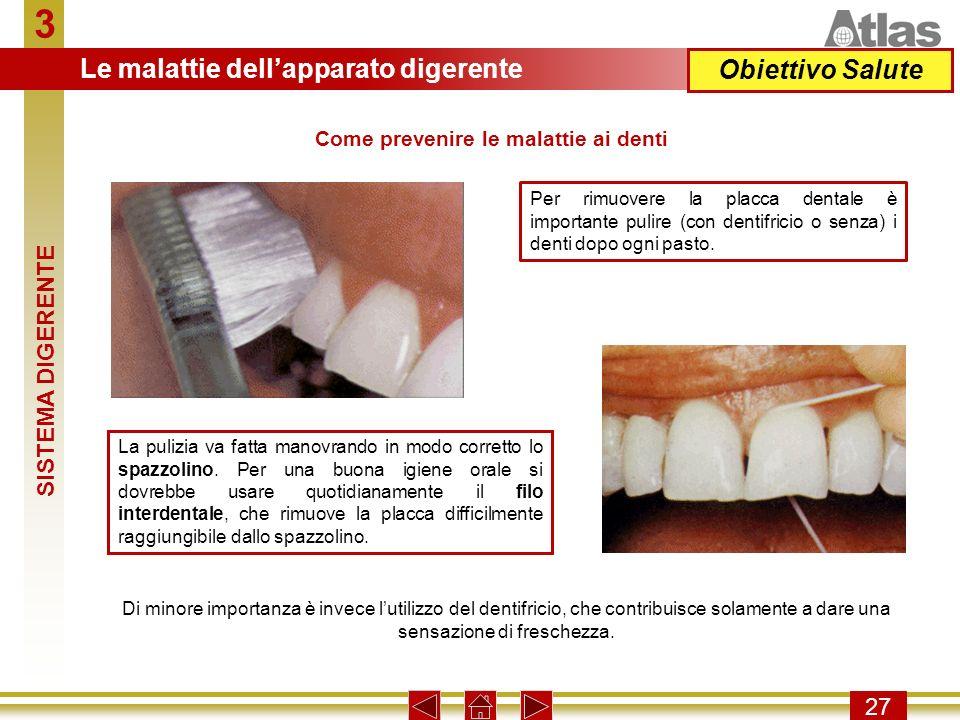 Come prevenire le malattie ai denti
