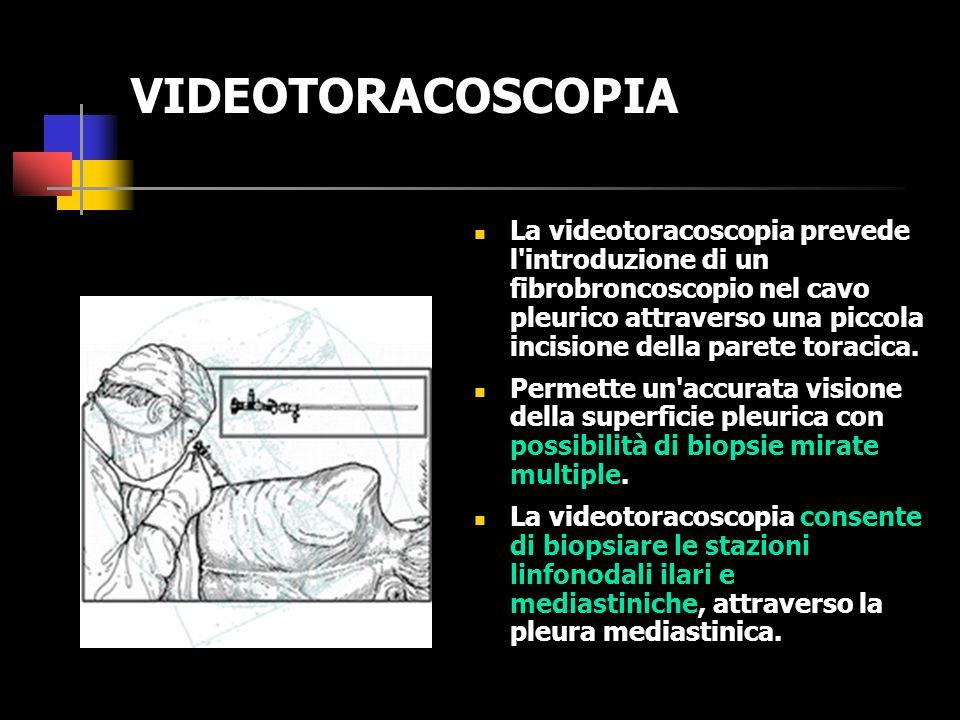 VIDEOTORACOSCOPIA