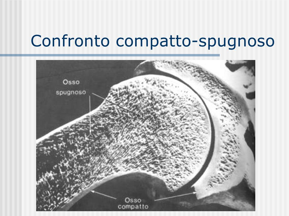 Confronto compatto-spugnoso