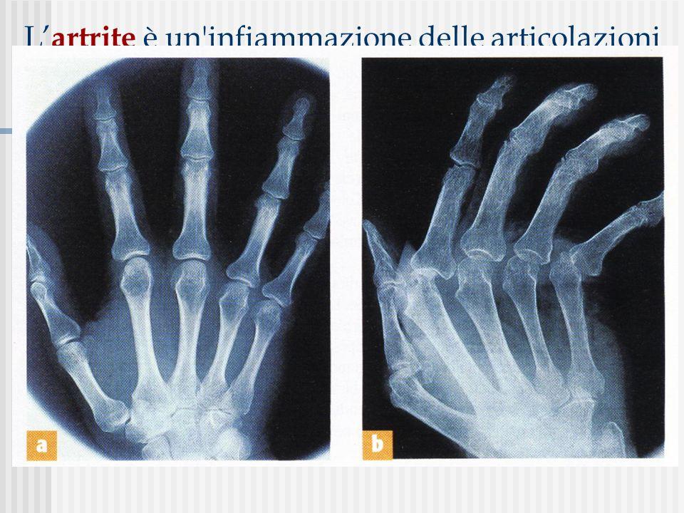 L'artrite è un infiammazione delle articolazioni che si manifesta con dolore e gonfiore; se non curata, può provocare la degenerazione delle cartilagini articolari