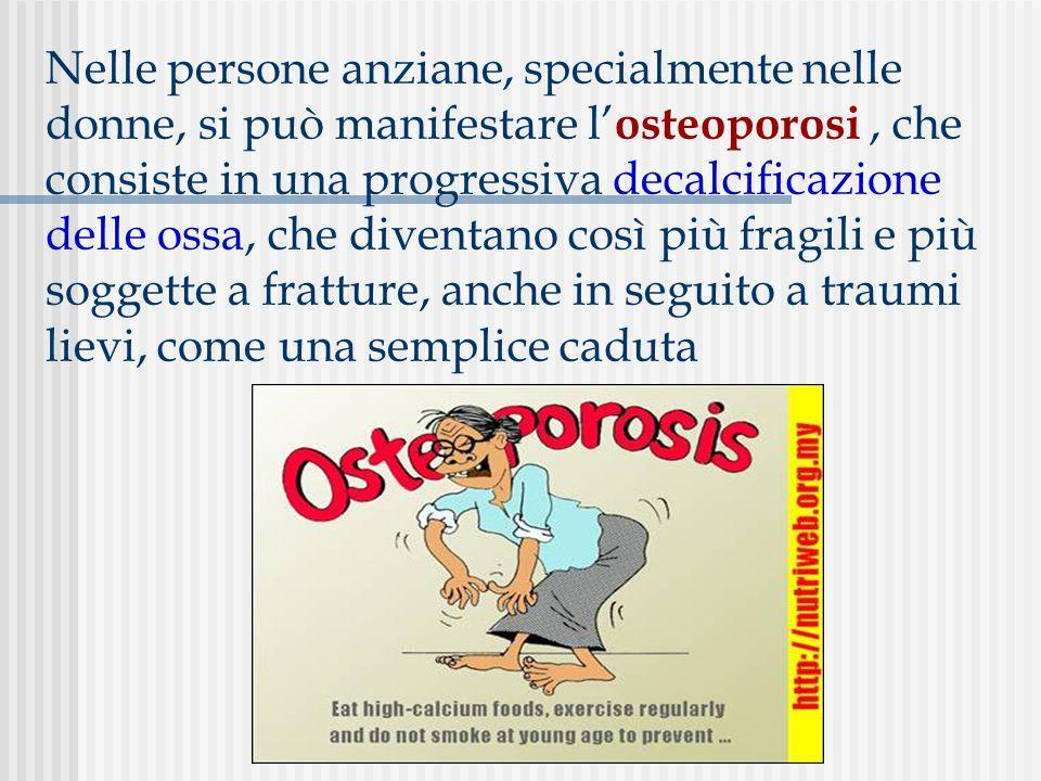 Nelle persone anziane, specialmente nelle donne, si può manifestare l'osteoporosi , che consiste in una progressiva decalcificazione delle ossa, che diventano così più fragili e più soggette a fratture, anche in seguito a traumi lievi, come una semplice caduta