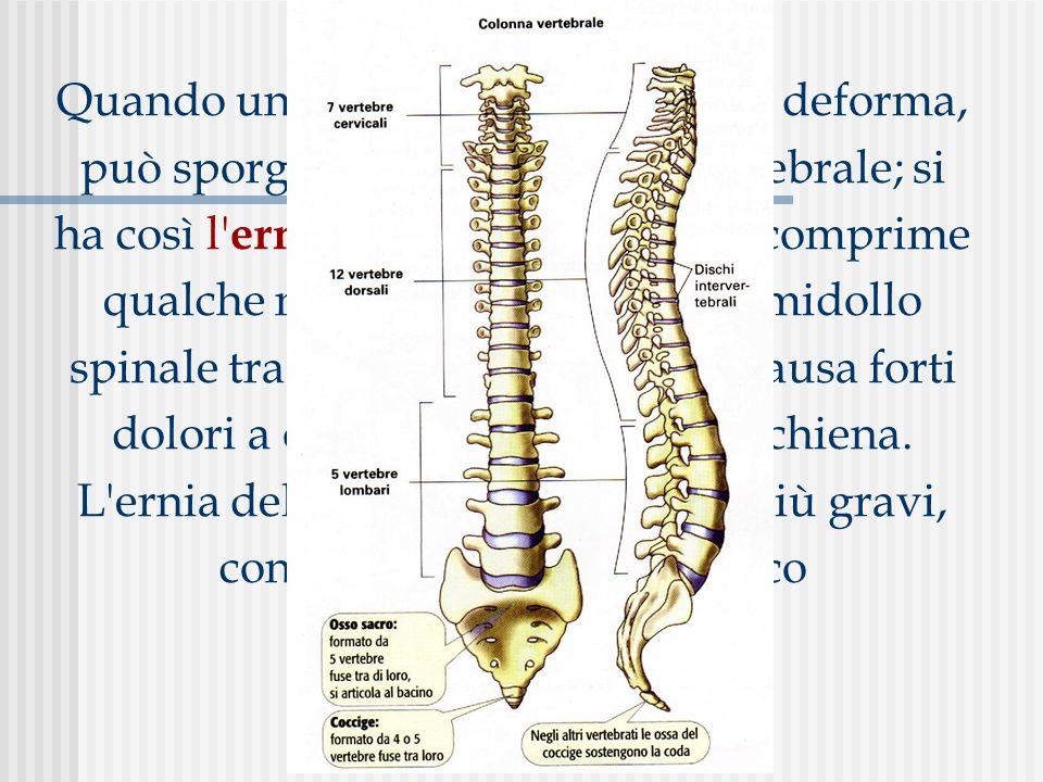 Quando un disco intervertebrale si deforma, può sporgere fuori dal corpo vertebrale; si ha così l ernia del disco.
