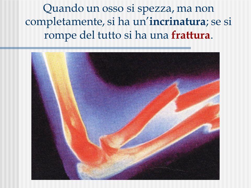 Quando un osso si spezza, ma non completamente, si ha un'incrinatura; se si rompe del tutto si ha una frattura.