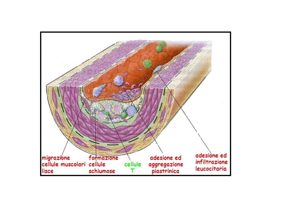 adesione ed infiltrazione. leucocitaria. migrazione. cellule muscolari. lisce. formazione. cellule.