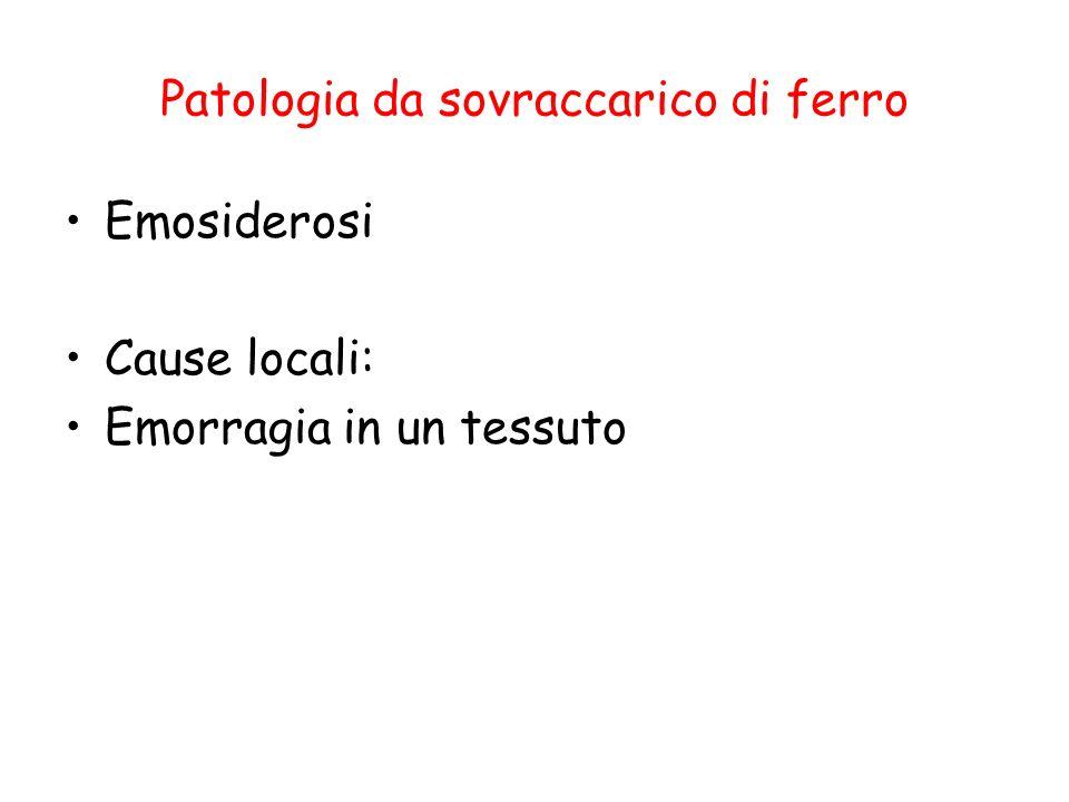 Patologia da sovraccarico di ferro