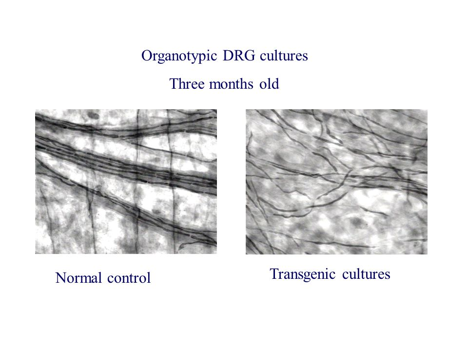 Organotypic DRG cultures