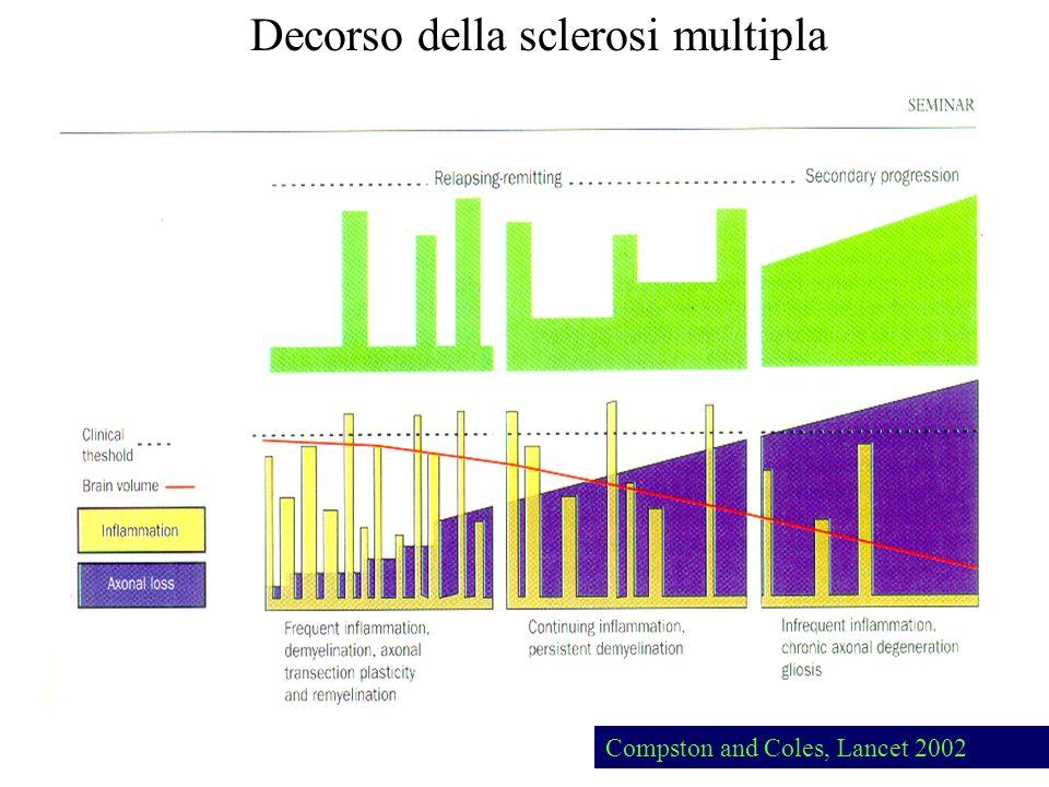 Decorso della sclerosi multipla