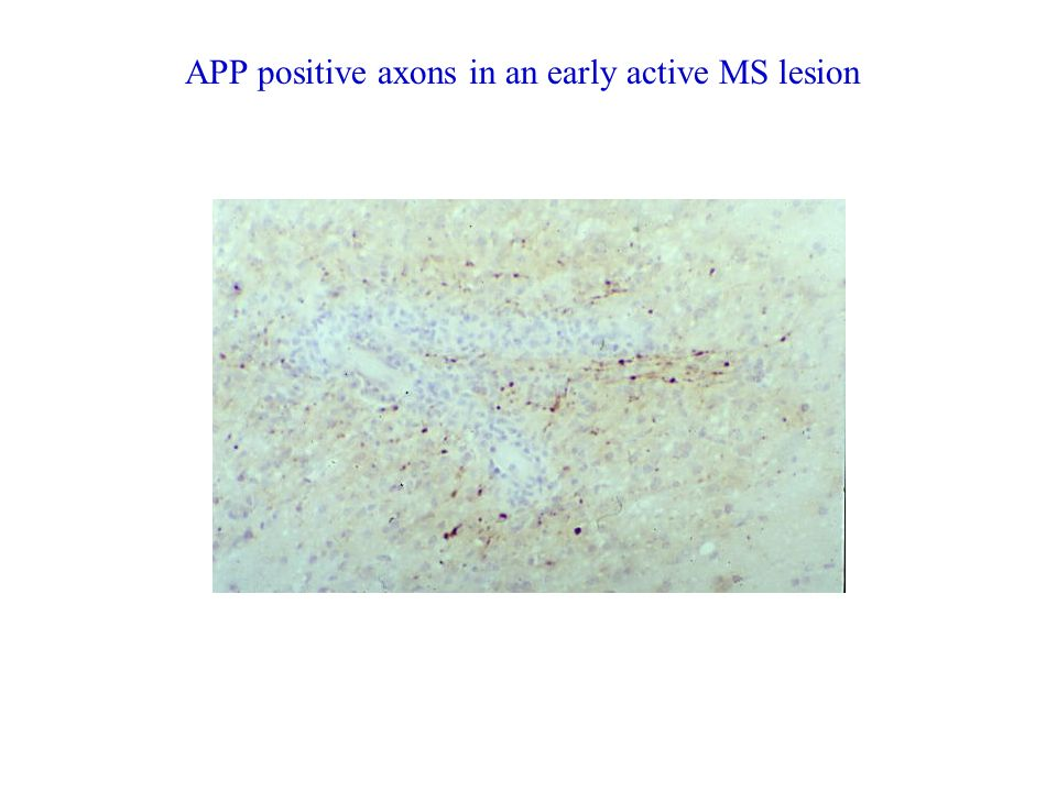 APP positive axons in an early active MS lesion