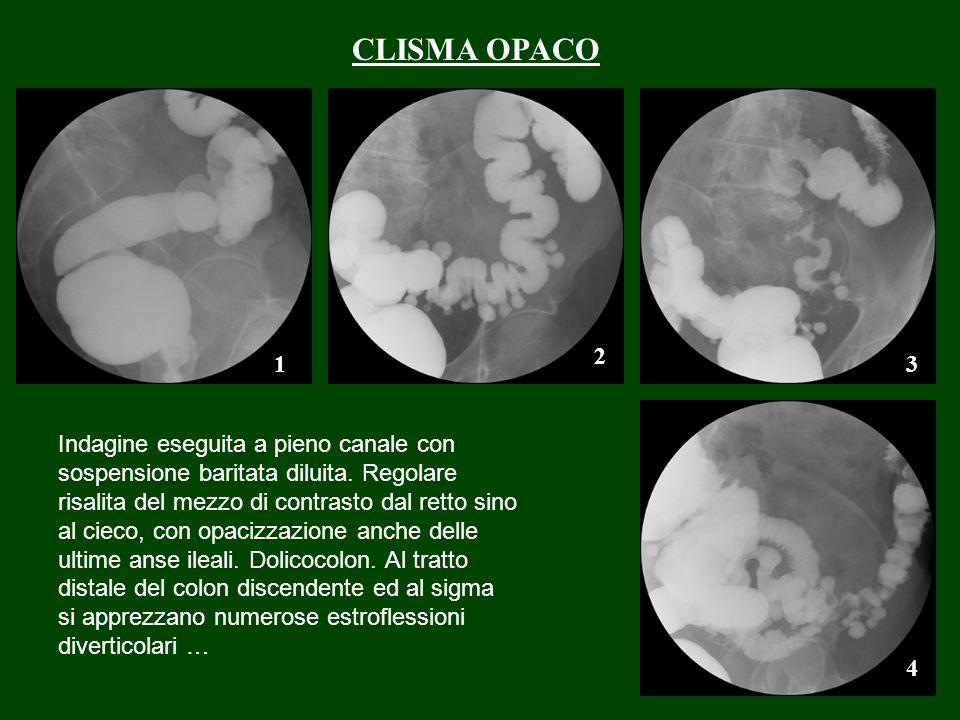 CLISMA OPACO 2. 1. 3.