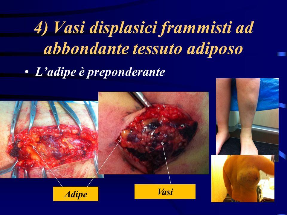 4) Vasi displasici frammisti ad abbondante tessuto adiposo