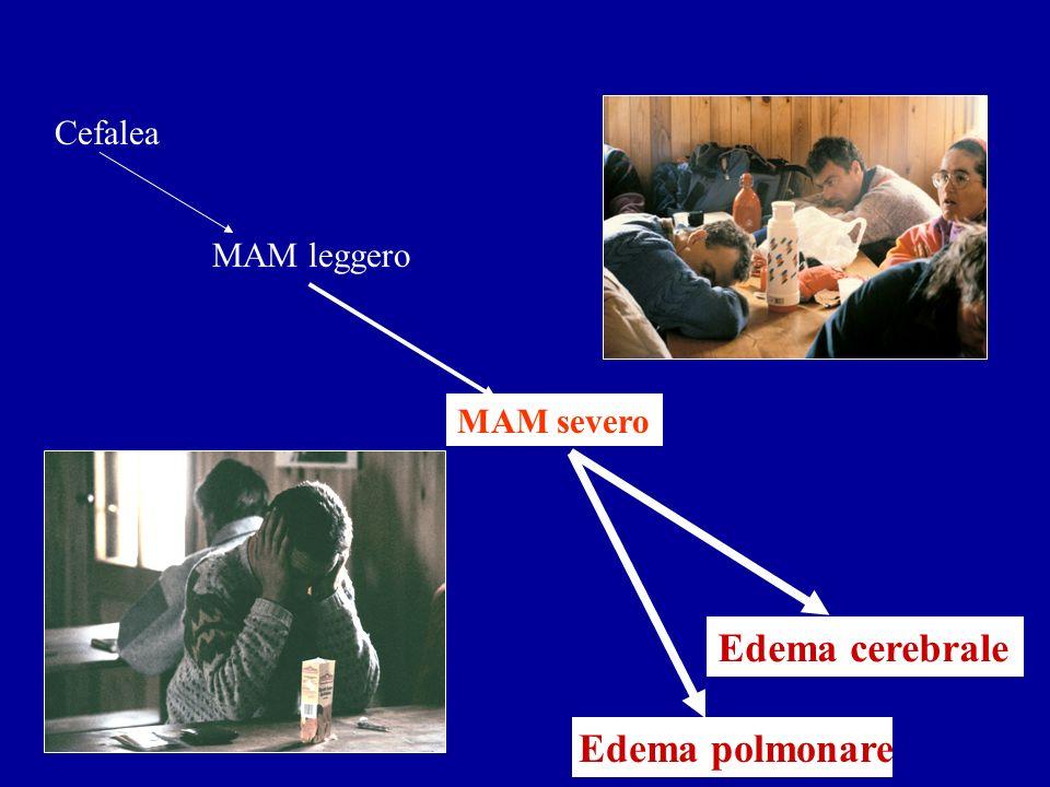 Cefalea MAM leggero MAM severo Edema cerebrale Edema polmonare