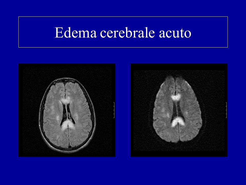 Edema cerebrale acuto