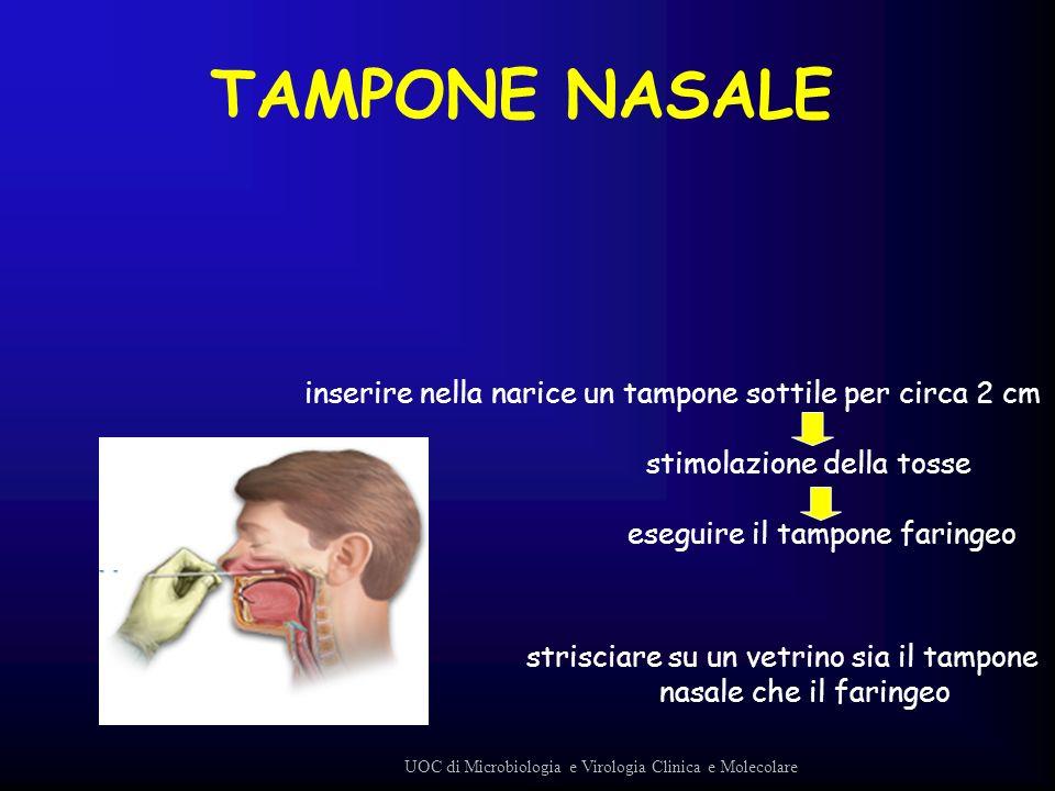 TAMPONE NASALE inserire nella narice un tampone sottile per circa 2 cm