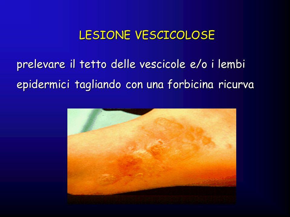 LESIONE VESCICOLOSE prelevare il tetto delle vescicole e/o i lembi epidermici tagliando con una forbicina ricurva.