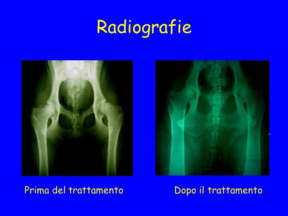 Radiografie Prima del trattamento Dopo il trattamento
