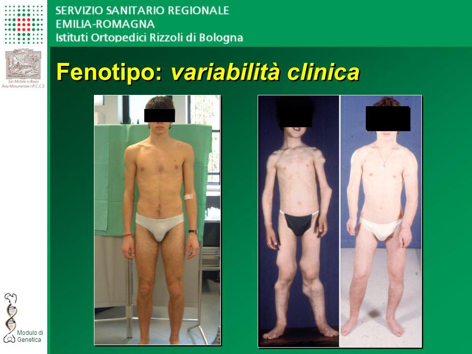 Fenotipo: variabilità clinica