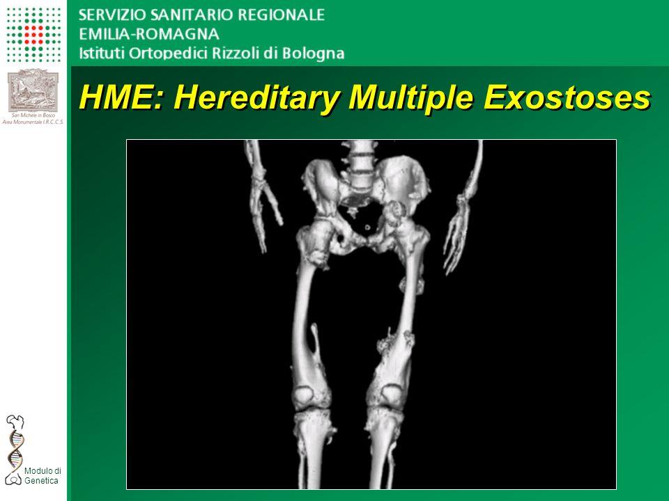 HME: Hereditary Multiple Exostoses