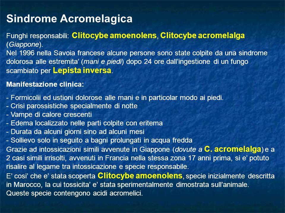 Sindrome Acromelagica