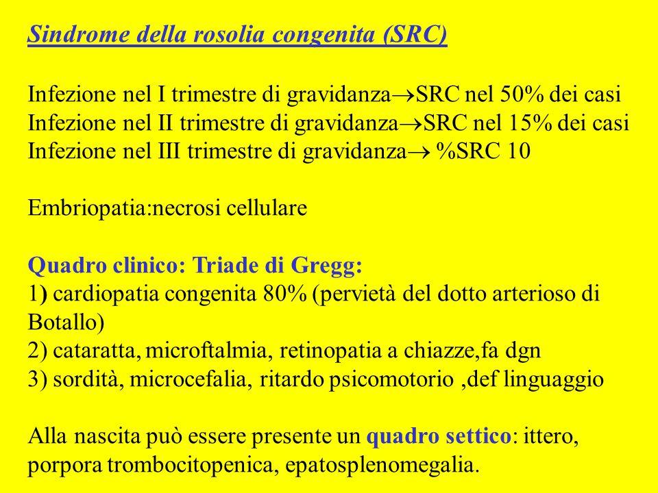 Sindrome della rosolia congenita (SRC)