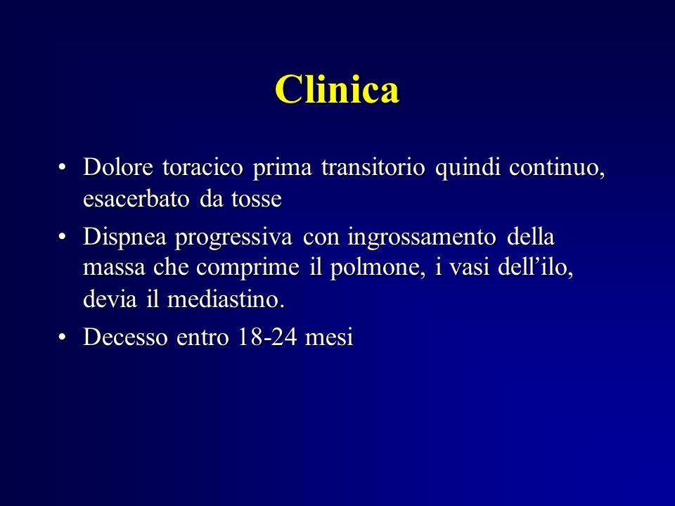 Clinica Dolore toracico prima transitorio quindi continuo, esacerbato da tosse.