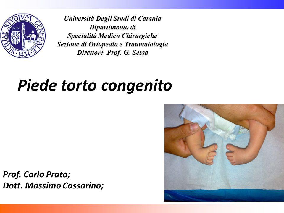 Piede torto congenito Prof. Carlo Prato; Dott. Massimo Cassarino;