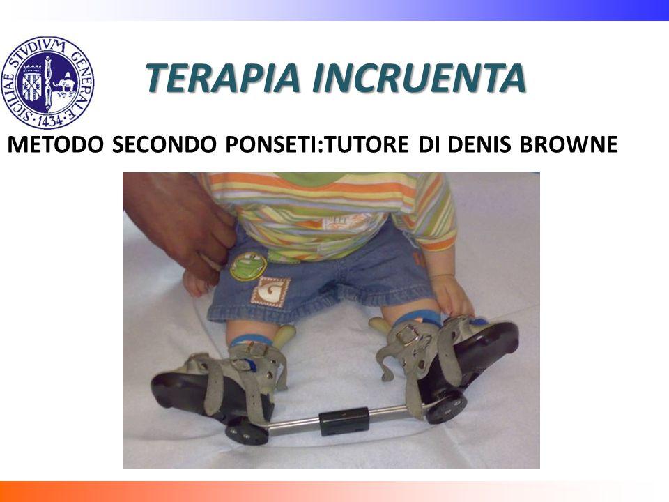 TERAPIA INCRUENTA METODO SECONDO PONSETI:TUTORE DI DENIS BROWNE