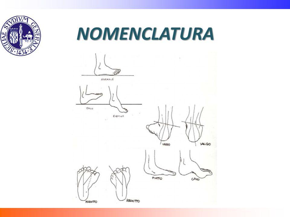 NOMENCLATURA Le varie deformità da prendere in considerazione per una corretta comprensione del ptc sono le seguenti: