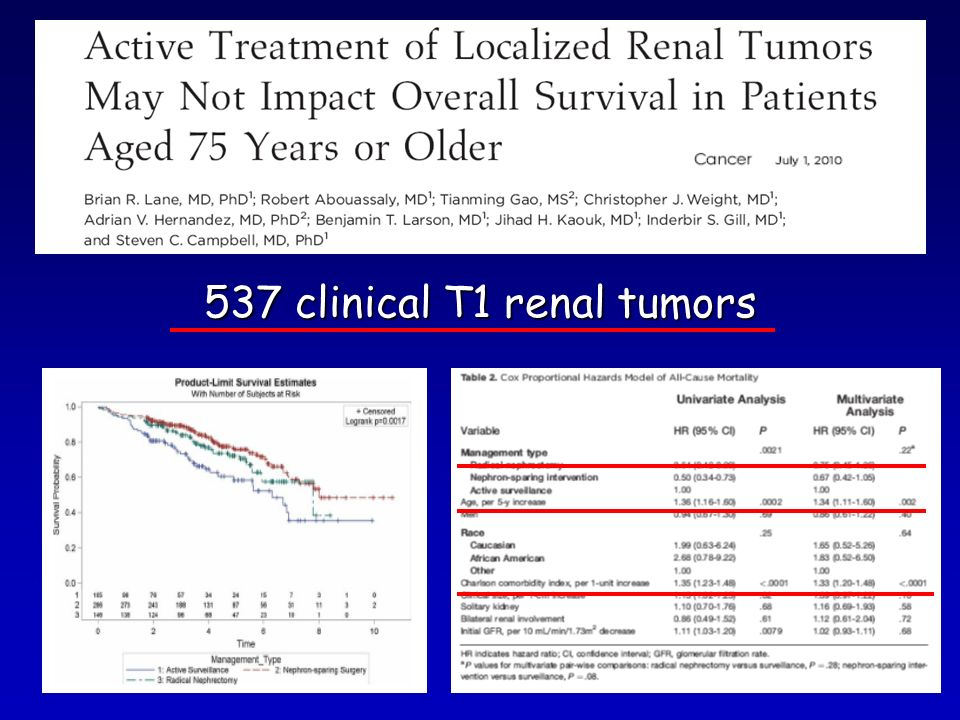 537 clinical T1 renal tumors