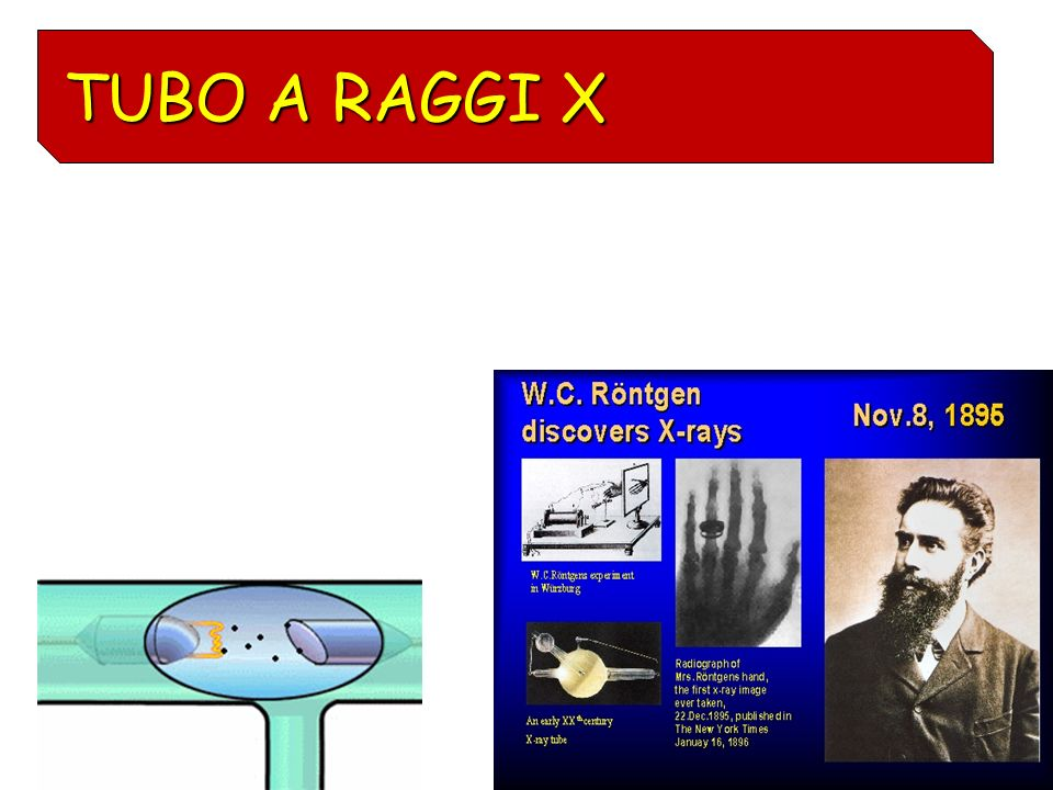 TUBO A RAGGI X