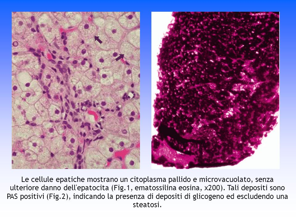Le cellule epatiche mostrano un citoplasma pallido e microvacuolato, senza ulteriore danno dell epatocita (Fig.1, ematossilina eosina, x200).