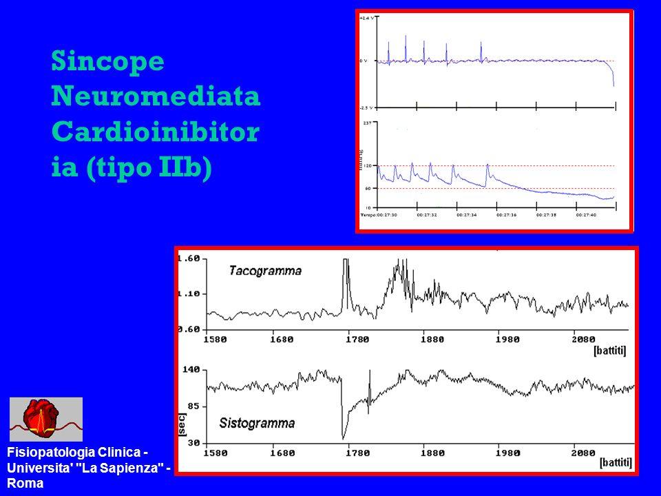 Sincope Neuromediata Cardioinibitoria (tipo IIb)