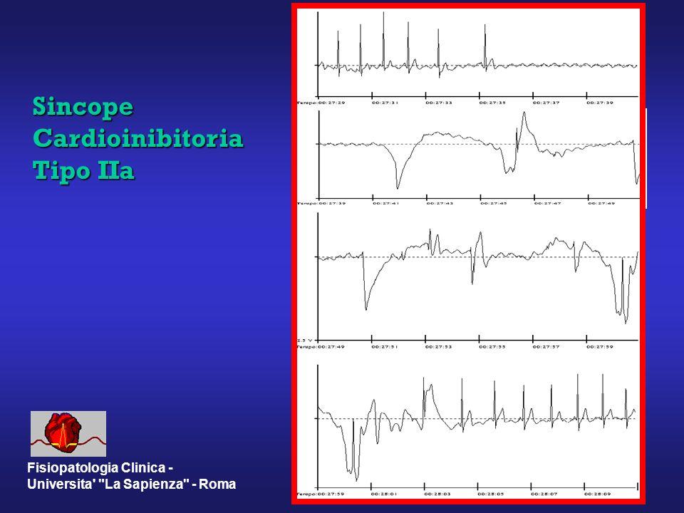 Sincope Cardioinibitoria Tipo IIa