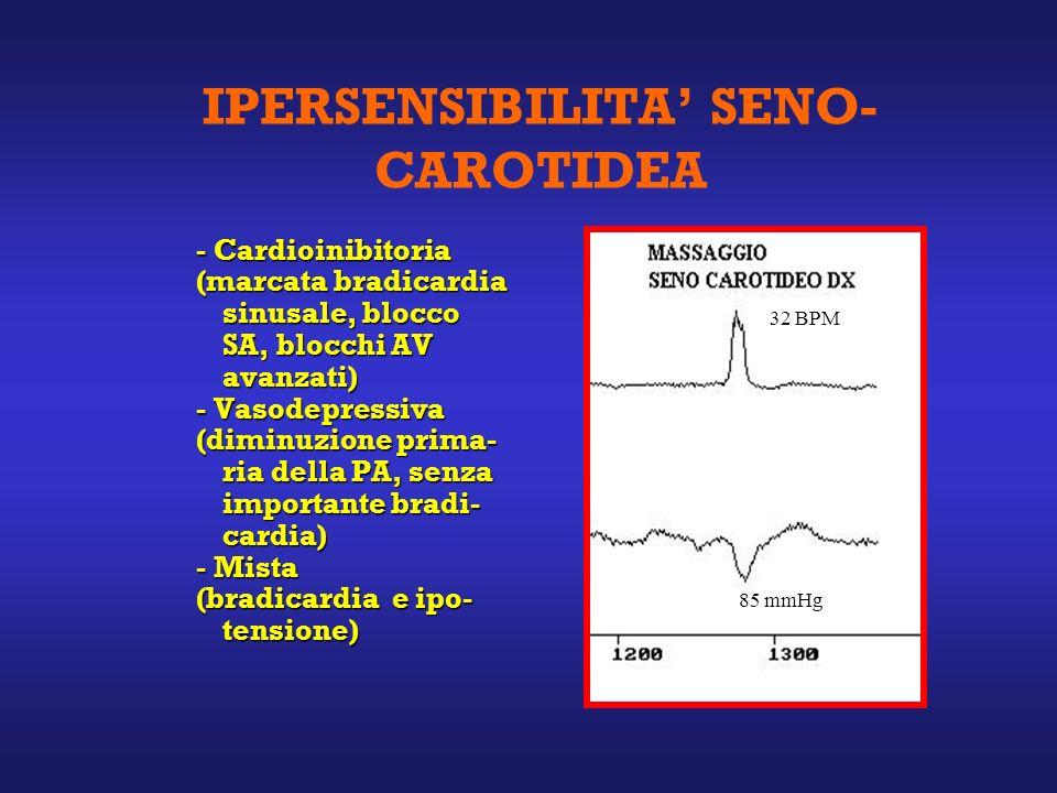 IPERSENSIBILITA' SENO-CAROTIDEA