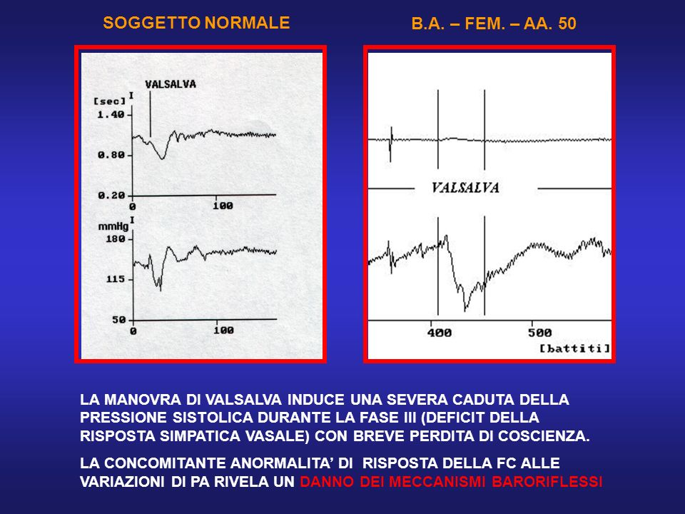 SOGGETTO NORMALE B.A. – FEM. – AA. 50