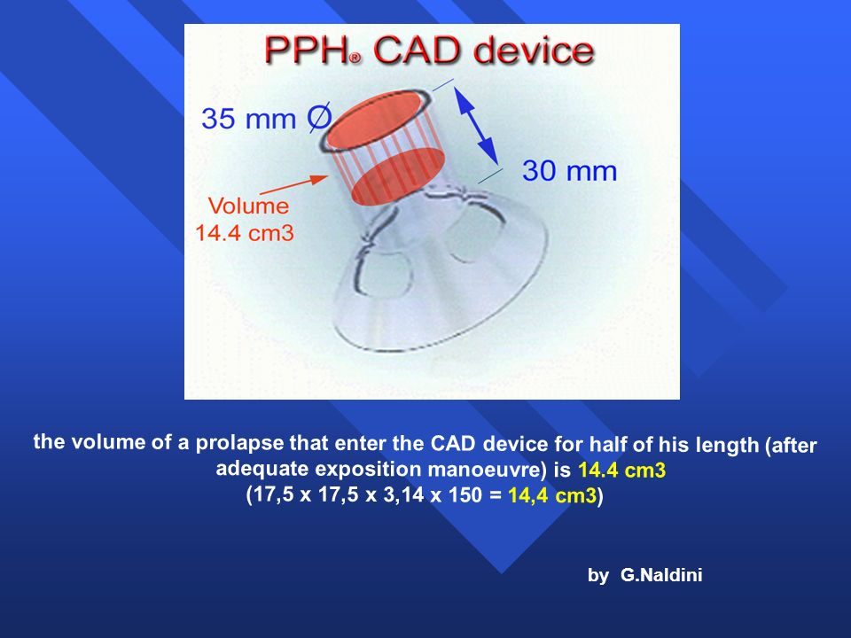 the volume of a prolapse that enter the CAD device for half of his length (after adequate exposition manoeuvre) is 14.4 cm3