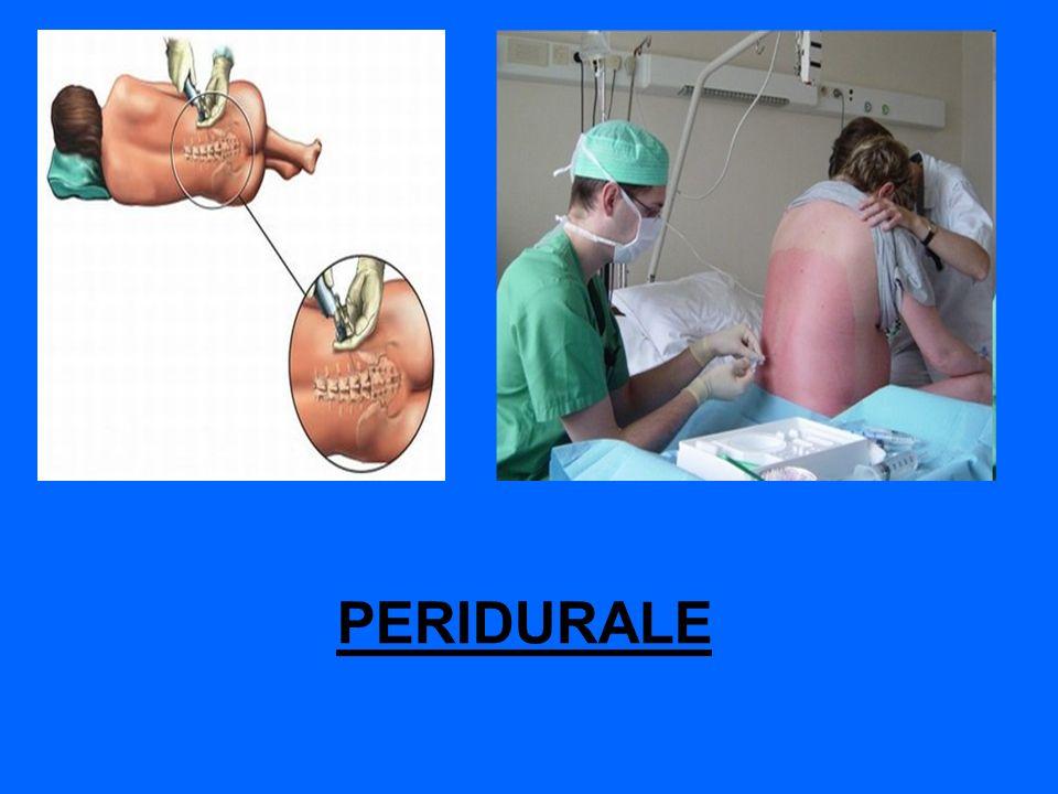 PERIDURALE