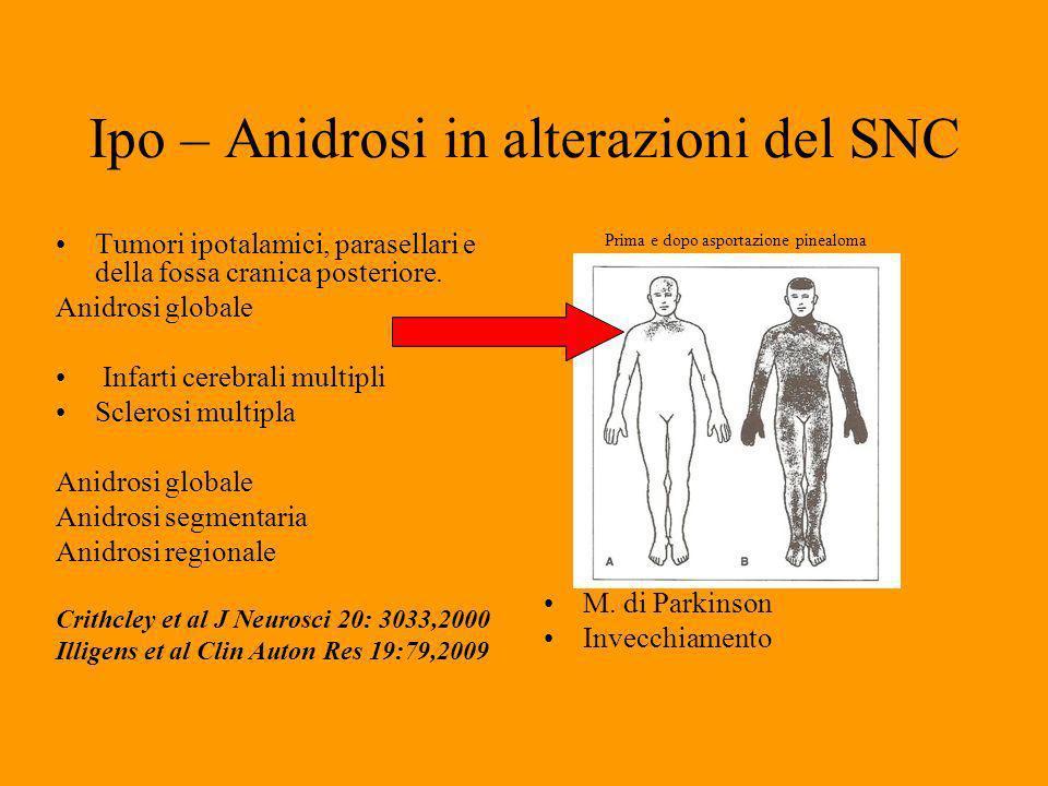 Ipo – Anidrosi in alterazioni del SNC