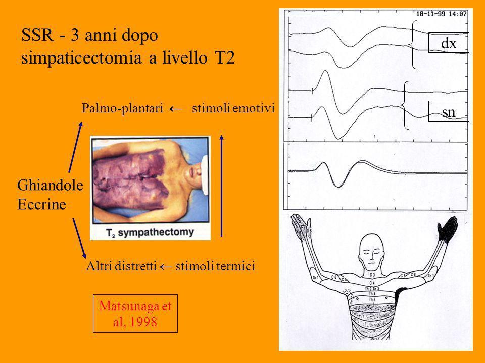 SSR - 3 anni dopo simpaticectomia a livello T2