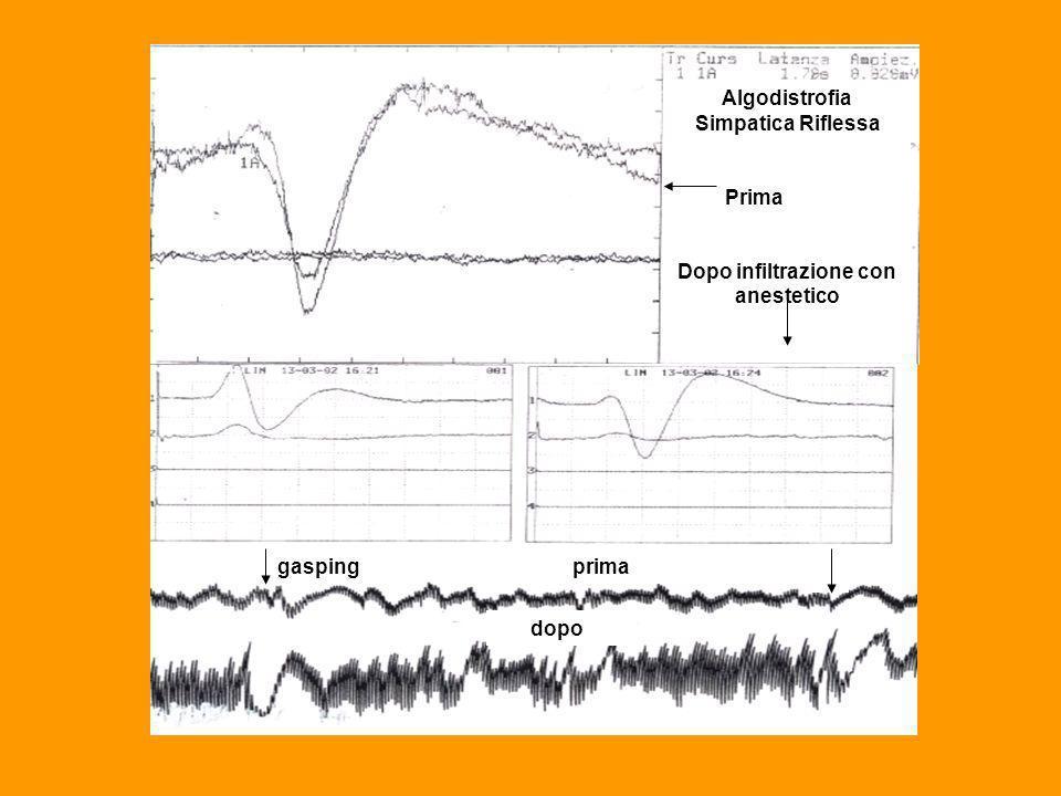 Algodistrofia Simpatica Riflessa Dopo infiltrazione con anestetico