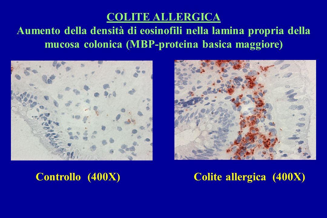 COLITE ALLERGICA Aumento della densità di eosinofili nella lamina propria della mucosa colonica (MBP-proteina basica maggiore)
