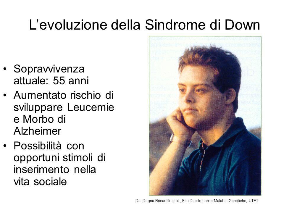 L'evoluzione della Sindrome di Down