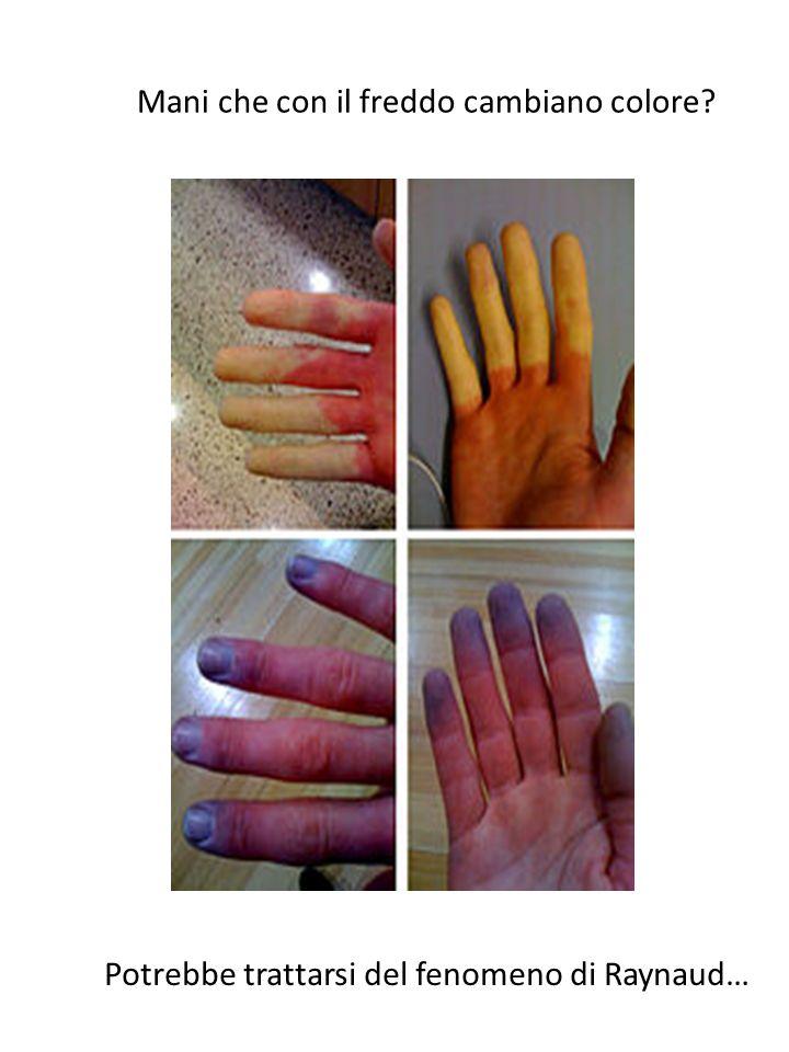 Mani che con il freddo cambiano colore