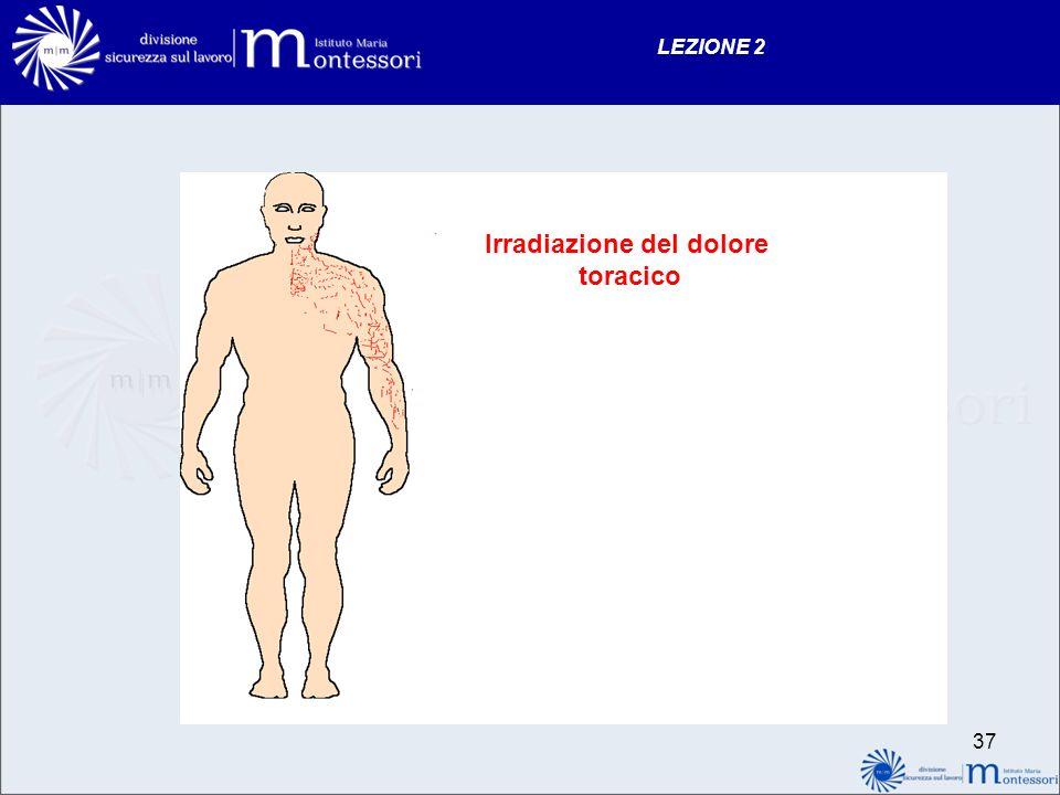 Irradiazione del dolore