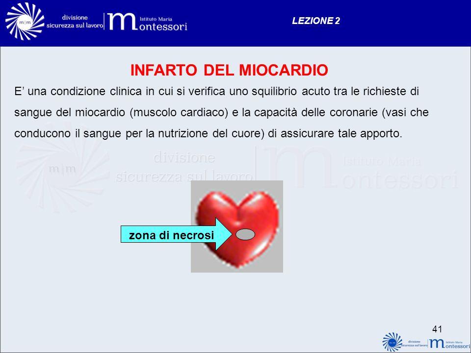 LEZIONE 2 INFARTO DEL MIOCARDIO.